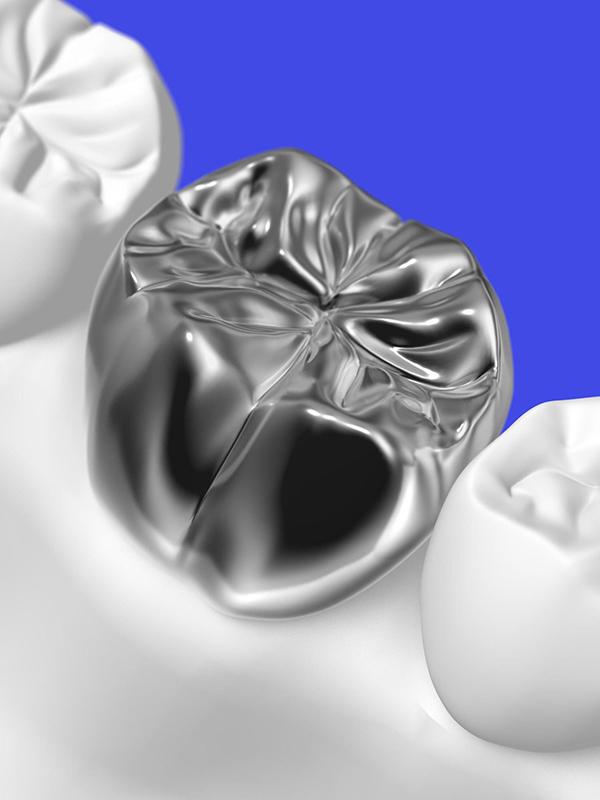 保険治療の「銀歯」は、「銀」以外も混ざった金属でできています