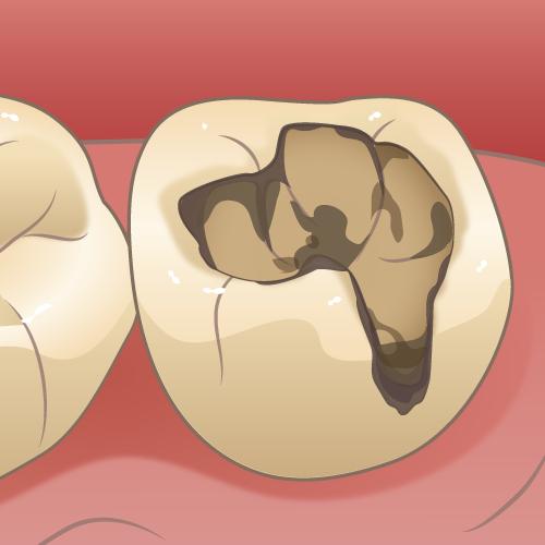 治療済みの歯が再び虫歯になる(二次虫歯)