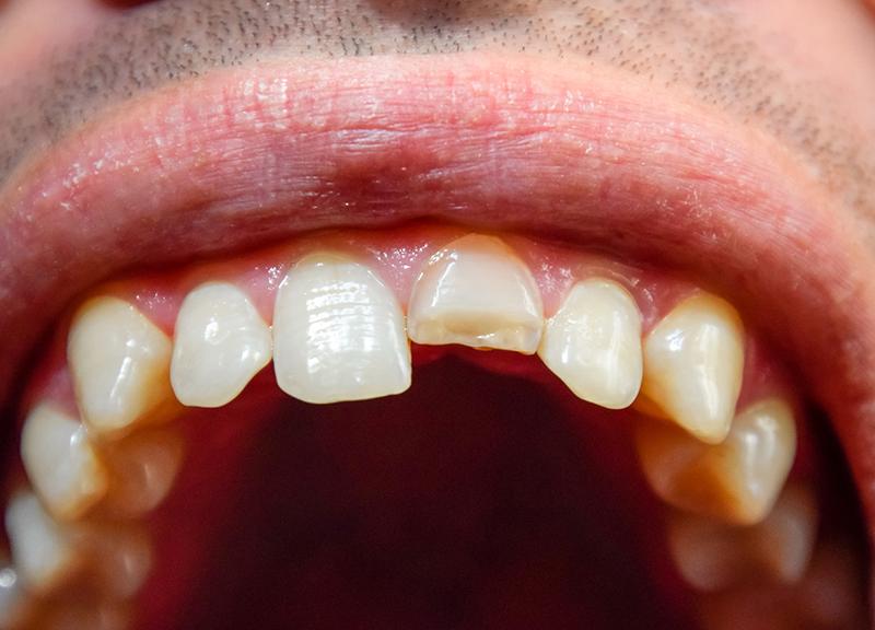歯の外傷(折れた・欠けた・ぐらぐらするなど)