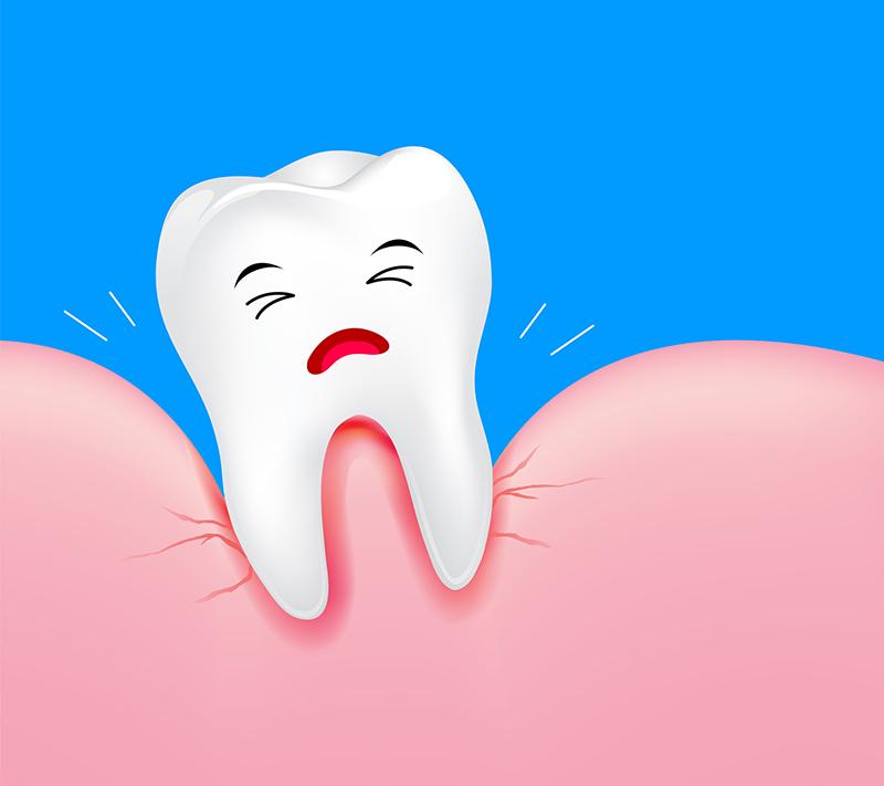 歯肉炎から歯周病へ進行し、最終的に歯が抜ける